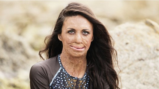 The Sky's The Limit: Turia Pitt Leads Fundraising Trek to Everest